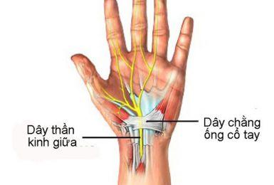 Phụ nữ trên 35 tuổi dễ bị hội chứng ống cổ tay