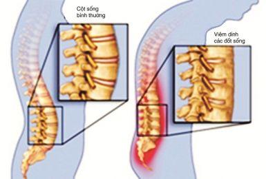 Điều trị viêm cột sống dính khớp sớm để ngăn chặn nguy cơ tàn phế