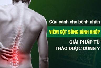 viêm cột sống dính khớp điều trị bằng trị cốt tán