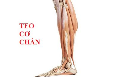 Bệnh teo cơ chân