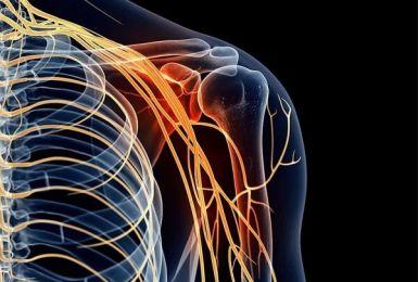viêm dây thần kinh cánh tay