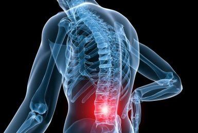 Mọi điều về hội chứng thắt lưng hông mà bạn nên biết