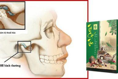 Trị Cốt Tán điều trị thoái hóa khớp hàm