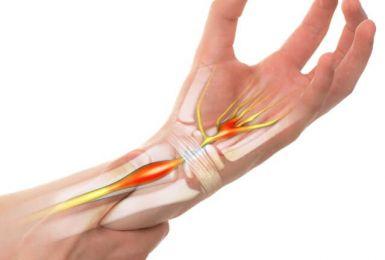 Hội chứng ống cổ tay: Nguyên nhân, Triệu chứng và Điều trị