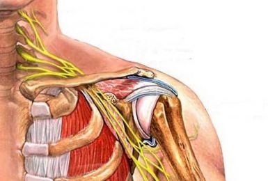 Lời khuyên dành cho người bệnh đau dây thần kinh vai gáy cổ