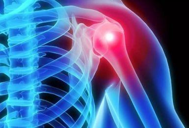 Những điều cần biết về thoái hóa khớp vai: Nguyên nhân và cách điều trị