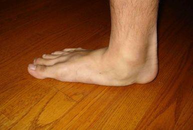 Bàn chân bẹt có những dấu hiệu gì? Cách xử lý như thế nào?