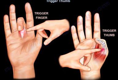 Nguyên nhân của bệnh ngón tay cò súng và cách điều trị hiệu quả