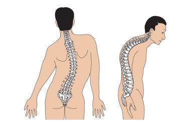 Vẹo cột sống ảnh hưởng nghiêm trọng đến chất lượng cuộc sống