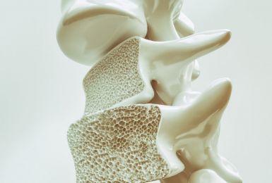Đo mật độ loãng xương - Phương pháp phát hiện nguy cơ loãng xương