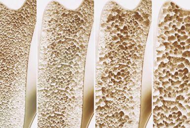 Những điều mà bạn nên biết về bệnh loãng xương độ 2