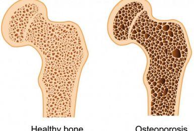 Những điều bạn cần biết về loãng xương độ 3