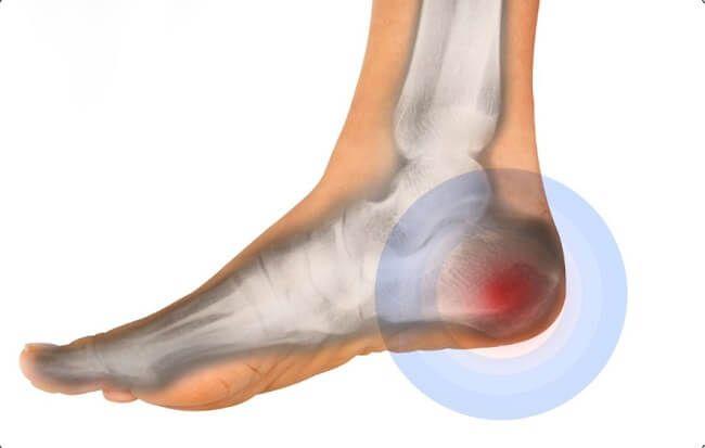 Đau gót chân có nguy hiểm không?