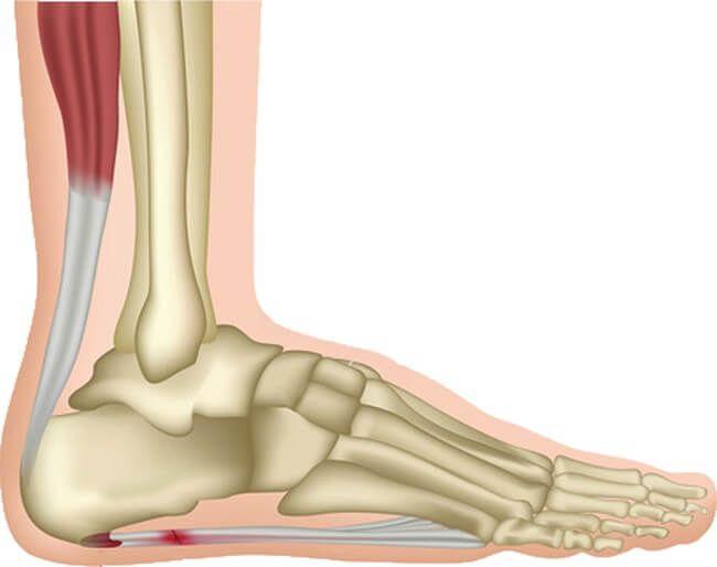 Đau gót chân do viêm gân