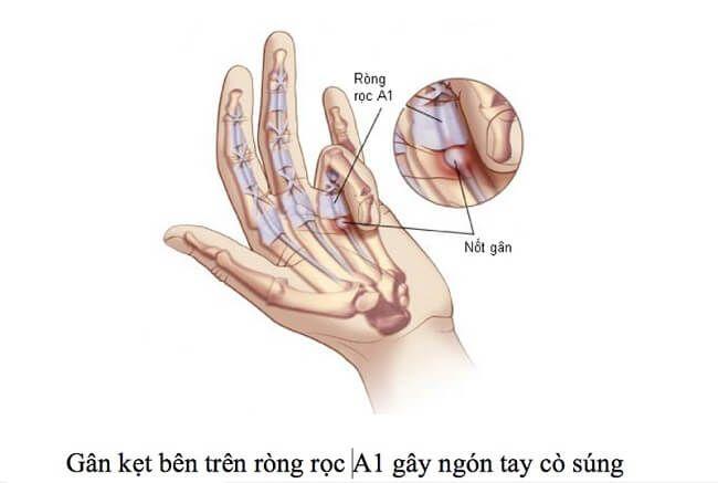 Hình ảnh gân kẹt của bệnh ngón tay cò súng