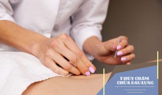 Thủy châm chữa đau lưng