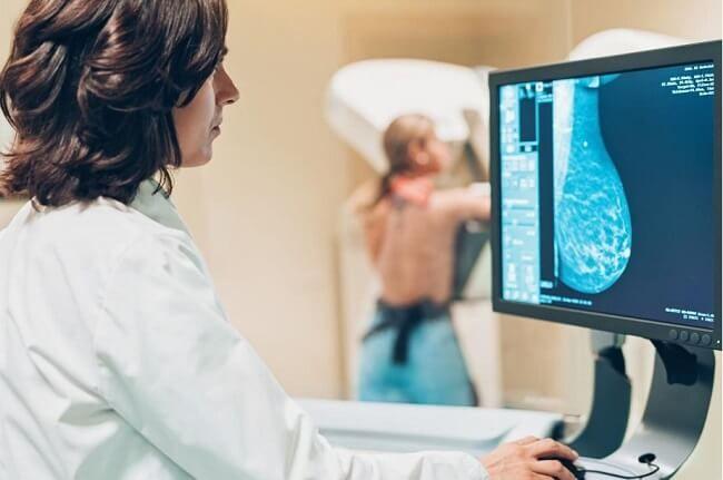 Câu hỏi liên quan đến X-quang