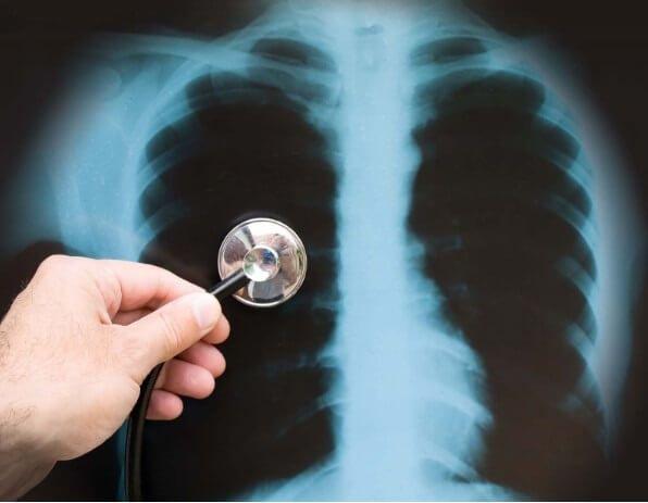 Chỉ định của chụp X-quang