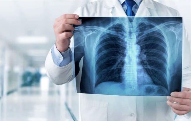 Chụp X-quang là gì?
