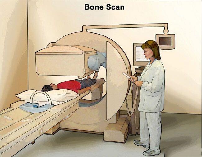 Chụp xạ hình xương là gì?