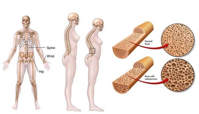 Dấu hiệu gây loãng xương độ 1