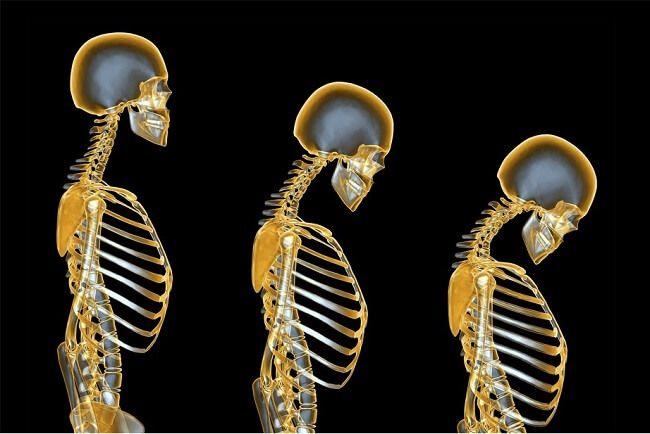 Khi nào cần xem xét điều trị khi có kết quả đo mật độ xương?