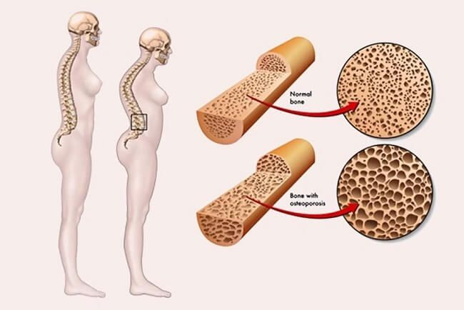 Loãng xương là nguyên nhân chính gây xẹp đốt sống