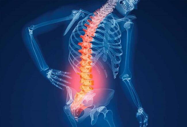Nguyên nhân gây loãng xương độ 1